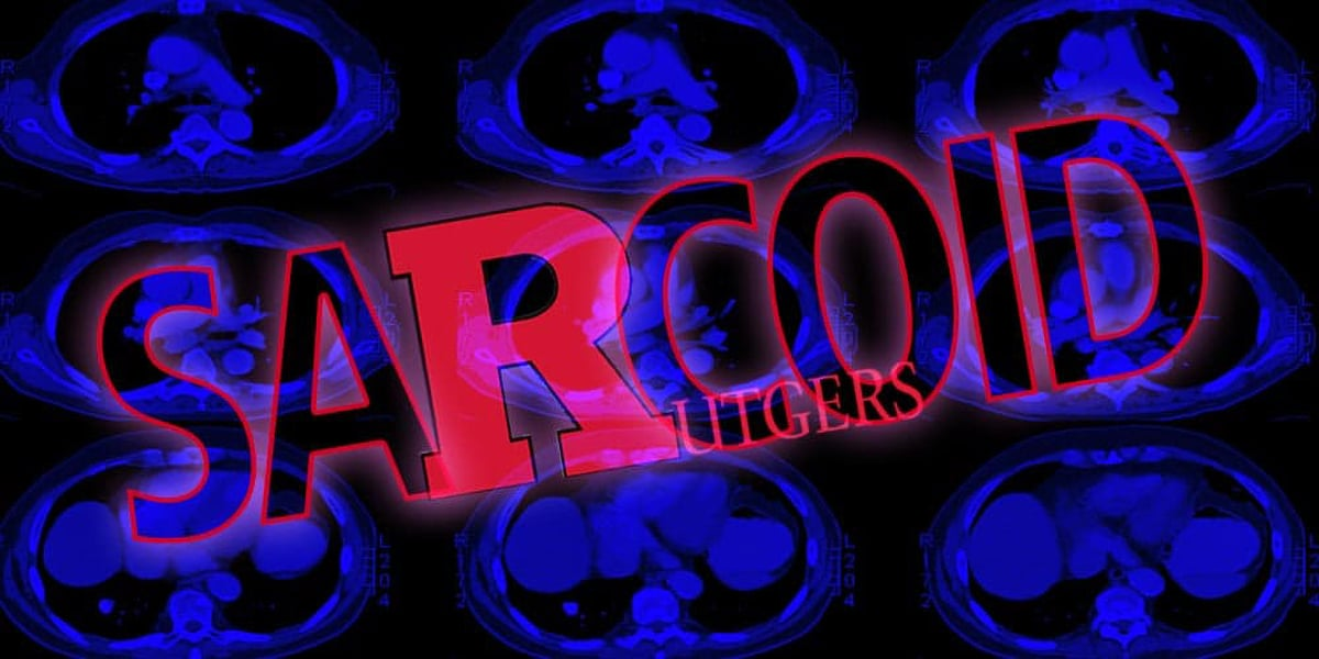 Sarcoid @ Rutgers: Looking For Clues 7