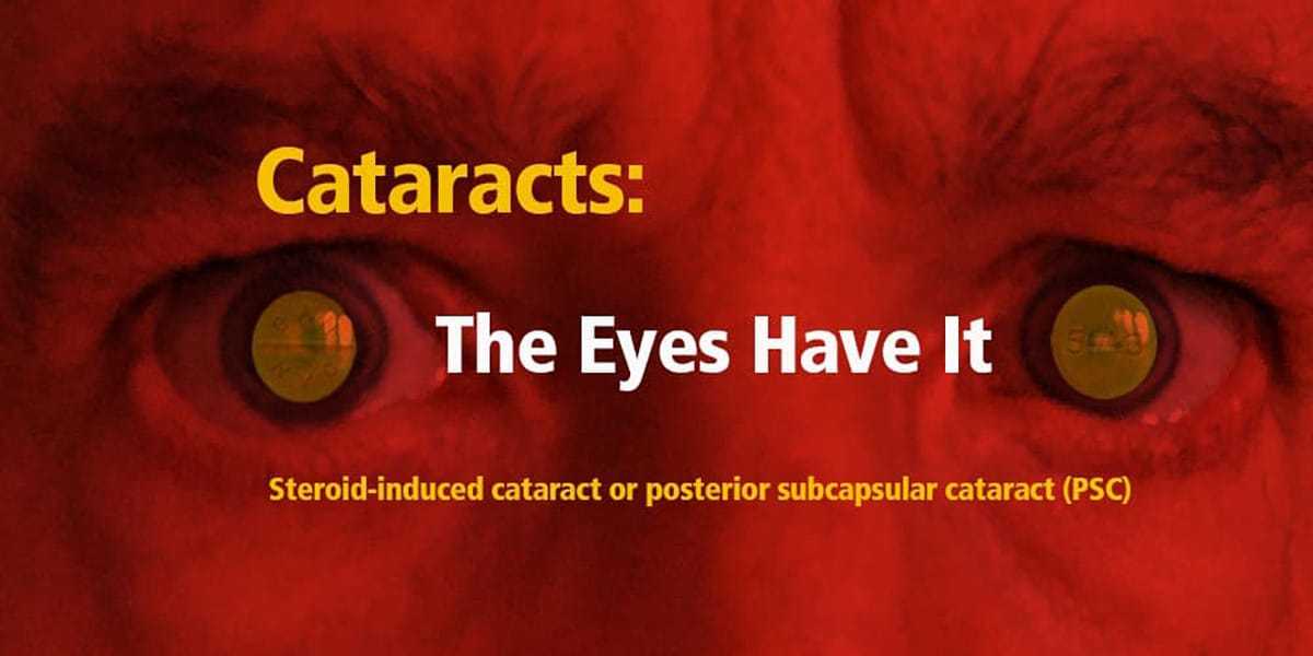 Cataracts The Eyes Have It